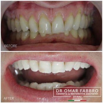 Whitening 10 Dr. Omar Fabbro
