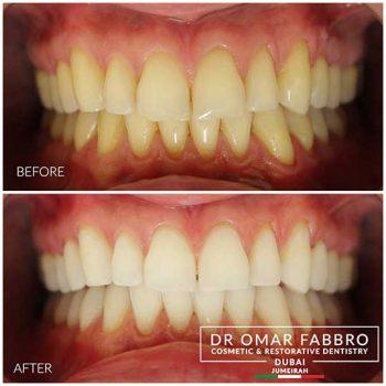 Whitening 2 Dr. Omar Fabbro