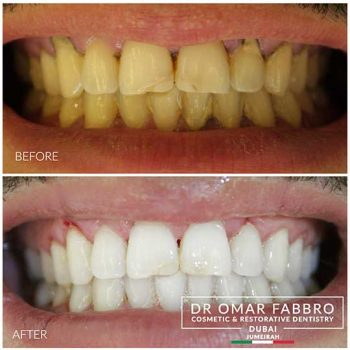 Whitening 3 Dr. Omar Fabbro