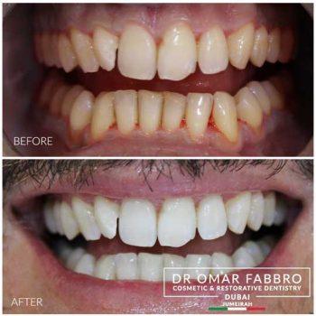 Whitening 5 Dr. Omar Fabbro