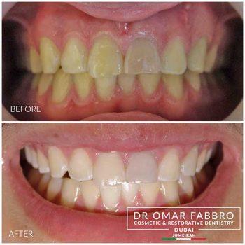 Whitening 6 Dr.Omar Fabbro