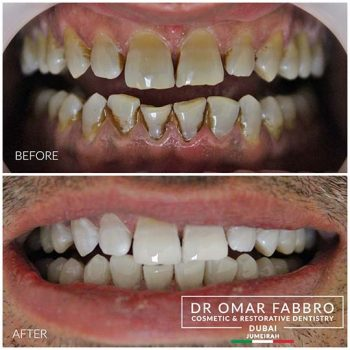 Whitening 7 Dr. Omar Fabbro