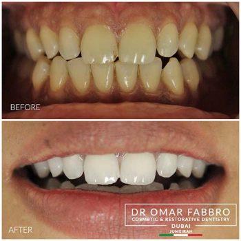 Whitening 8 Dr. Omar Fabbro