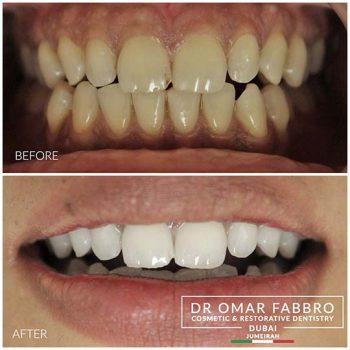Whitening 8 Dr. Omar Fabbro LR