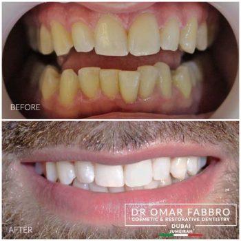 Whitening 9 Dr. Omar Fabbro