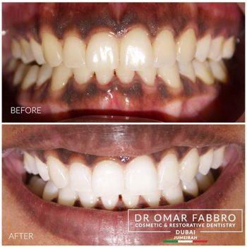 Whitening Dr. Omar Fabbro